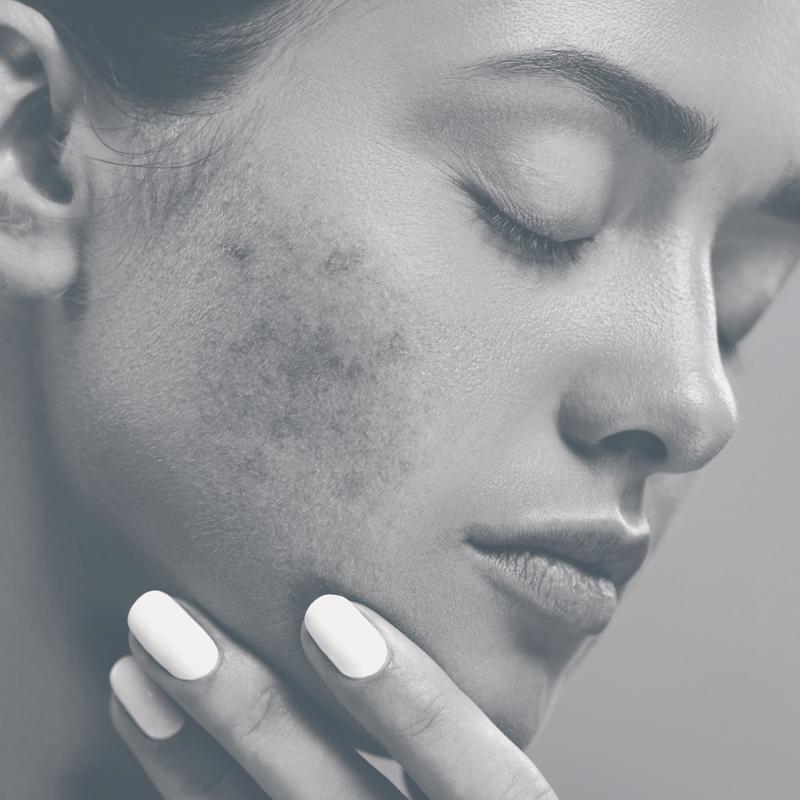 SkinSensible huidaandoening