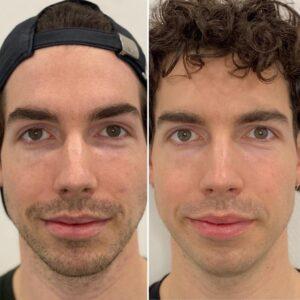 Voor (links) en Na (rechts) 2 profhilo behandelingen